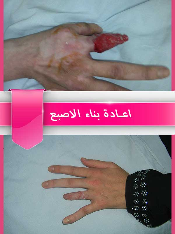 اعادة-بناء-الاصبع