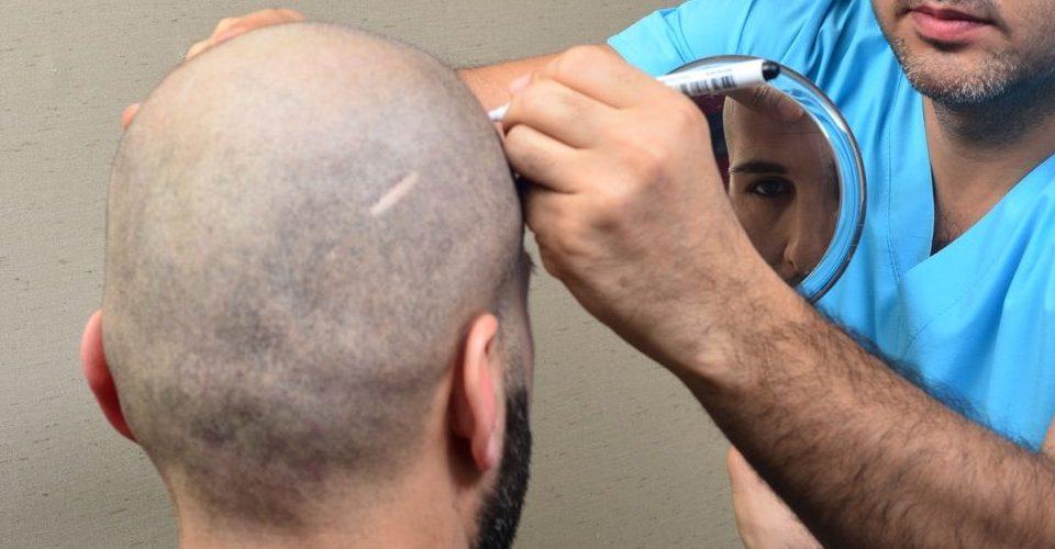 اعادة بناء فروة الرأس بعد الحروق