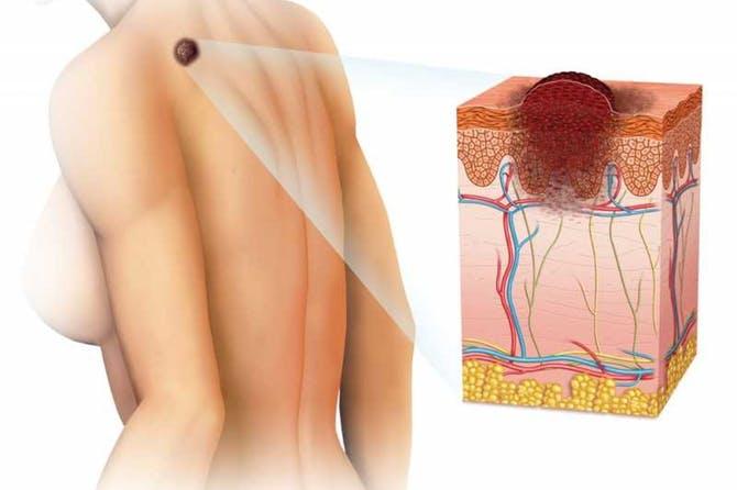 اورام الجلد السرطانية