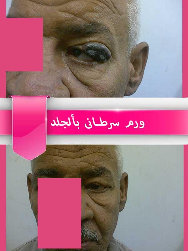 ورم-سرطانى-بالجلد